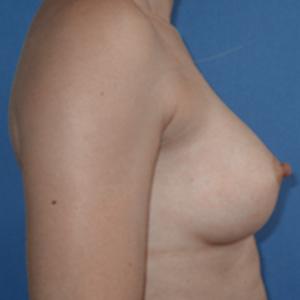 Antes de la cirugía